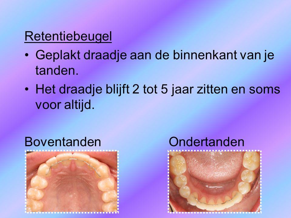 Retentiebeugel Geplakt draadje aan de binnenkant van je tanden. Het draadje blijft 2 tot 5 jaar zitten en soms voor altijd. Boventanden Ondertanden