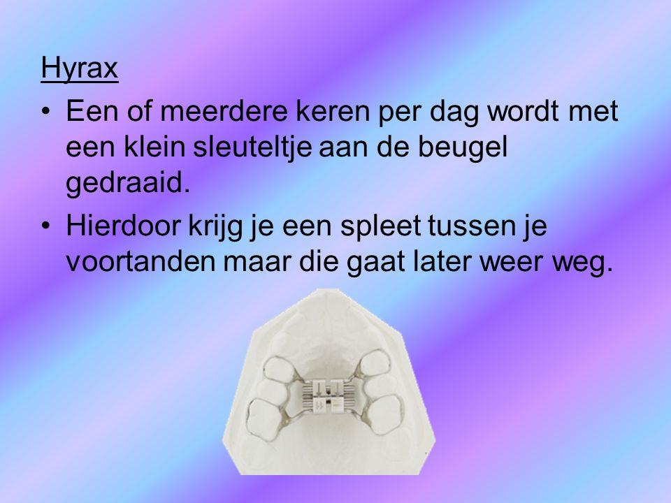 Hyrax Een of meerdere keren per dag wordt met een klein sleuteltje aan de beugel gedraaid. Hierdoor krijg je een spleet tussen je voortanden maar die