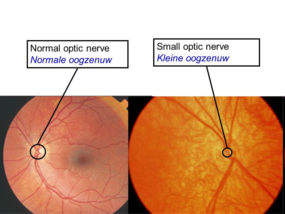 Normal optic nerve Normale oogzenuw Small optic nerve Kleine oogzenuw