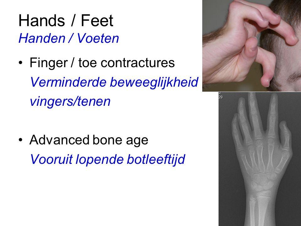 Hands / Feet Handen / Voeten Finger / toe contractures Verminderde beweeglijkheid vingers/tenen Advanced bone age Vooruit lopende botleeftijd