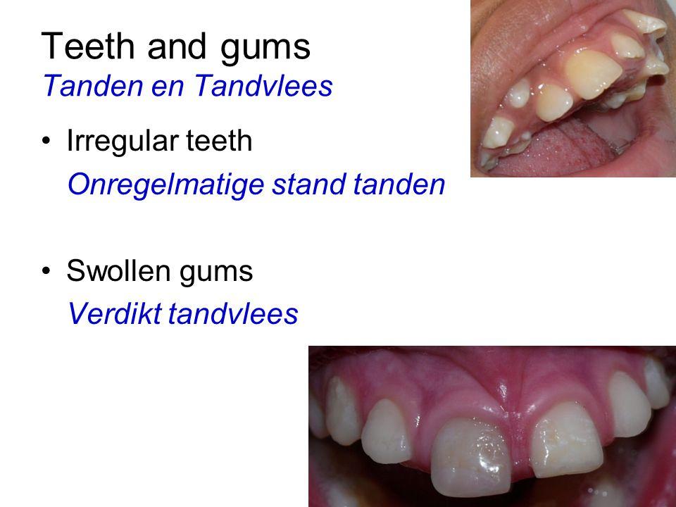 Teeth and gums Tanden en Tandvlees Irregular teeth Onregelmatige stand tanden Swollen gums Verdikt tandvlees