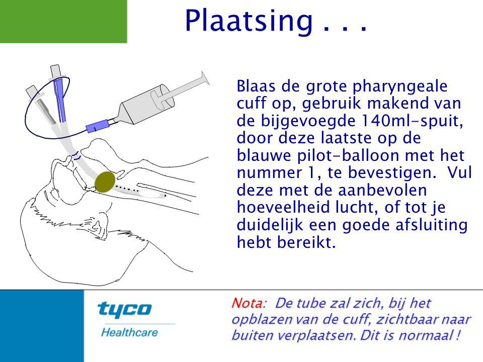 Blaas de grote pharyngeale cuff op, gebruik makend van de bijgevoegde 140ml-spuit, door deze laatste op de blauwe pilot-balloon met het nummer 1, te b