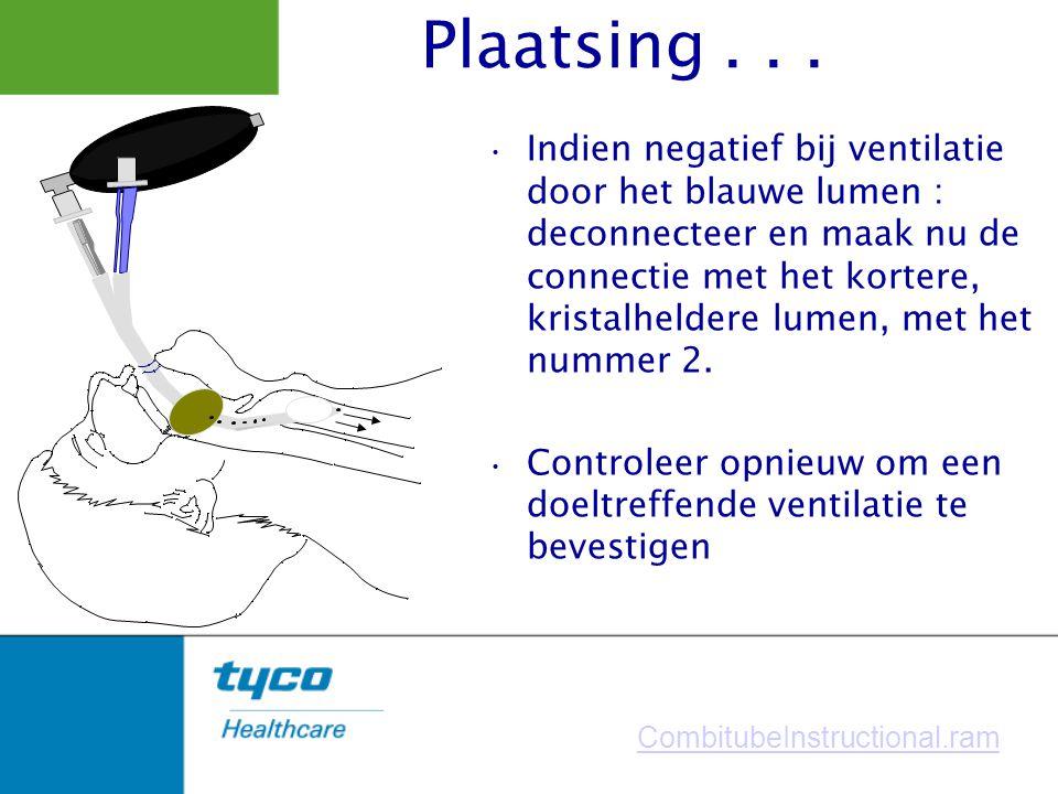 Indien negatief bij ventilatie door het blauwe lumen : deconnecteer en maak nu de connectie met het kortere, kristalheldere lumen, met het nummer 2. C