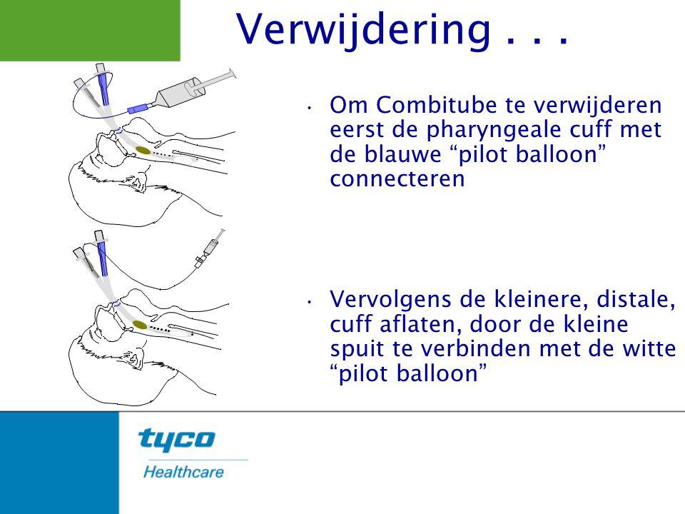 """Om Combitube te verwijderen eerst de pharyngeale cuff met de blauwe """"pilot balloon"""" connecteren Vervolgens de kleinere, distale, cuff aflaten, door de"""