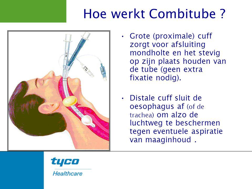 Grote (proximale) cuff zorgt voor afsluiting mondholte en het stevig op zijn plaats houden van de tube (geen extra fixatie nodig). Distale cuff sluit
