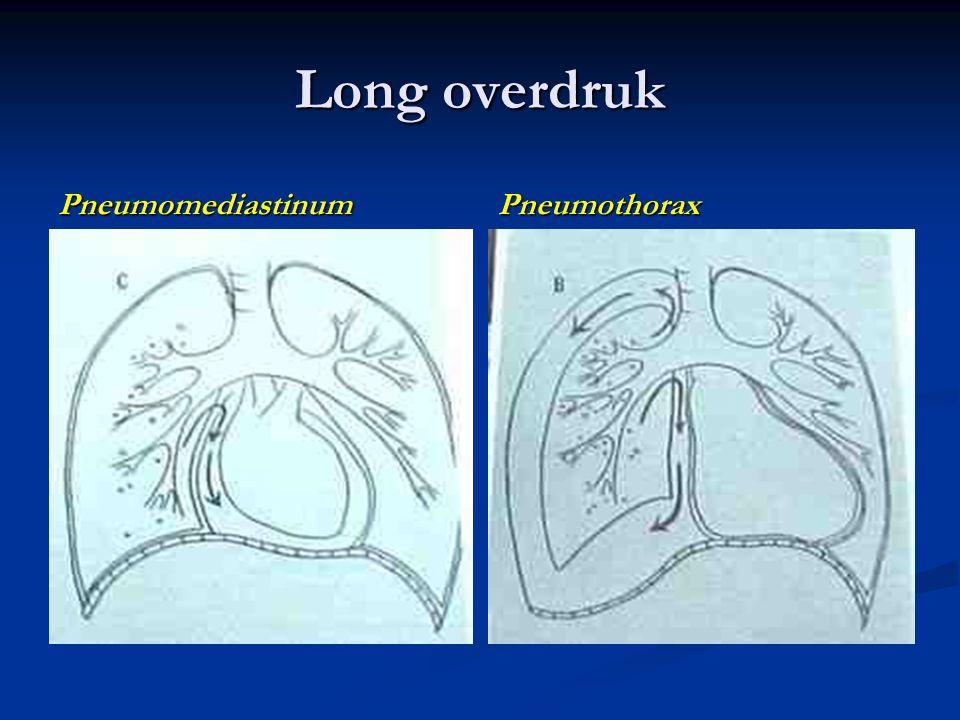 Pneumomediastinum Pneumothorax