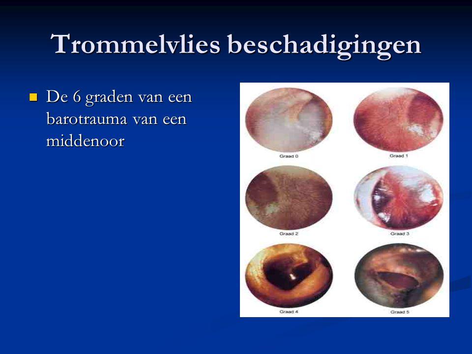 Trommelvlies beschadigingen De 6 graden van een barotrauma van een middenoor De 6 graden van een barotrauma van een middenoor