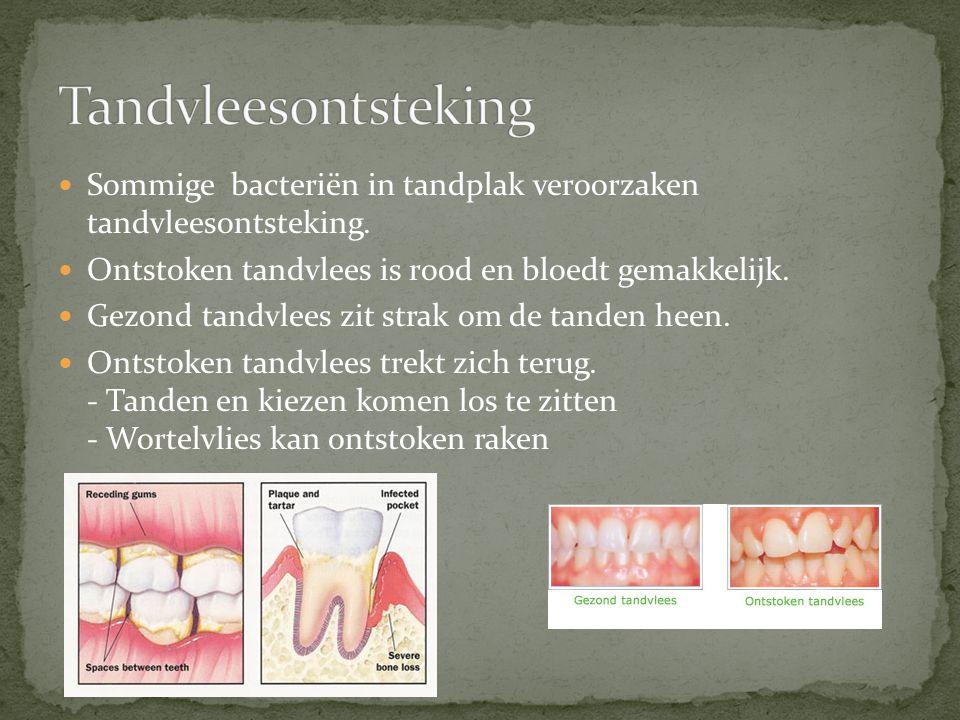 Sommige bacteriën in tandplak veroorzaken tandvleesontsteking. Ontstoken tandvlees is rood en bloedt gemakkelijk. Gezond tandvlees zit strak om de tan