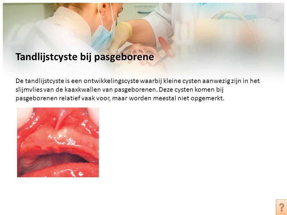 Tandlijstcyste bij pasgeborene De tandlijstcyste is een ontwikkelingscyste waarbij kleine cysten aanwezig zijn in het slijmvlies van de kaaxkwallen va