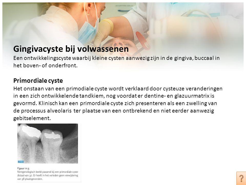 Gingivacyste bij volwassenen Een ontwikkelingscyste waarbij kleine cysten aanwezig zijn in de gingiva, buccaal in het boven- of onderfront. Primordial