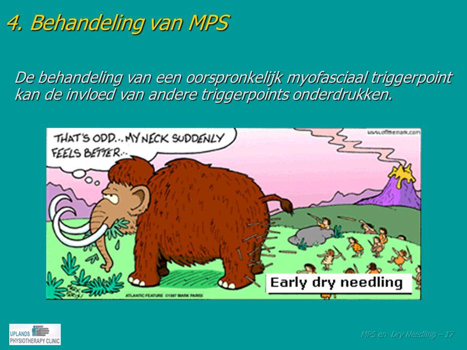 4. Behandeling van MPS De behandeling van een oorspronkelijk myofasciaal triggerpoint kan de invloed van andere triggerpoints onderdrukken.