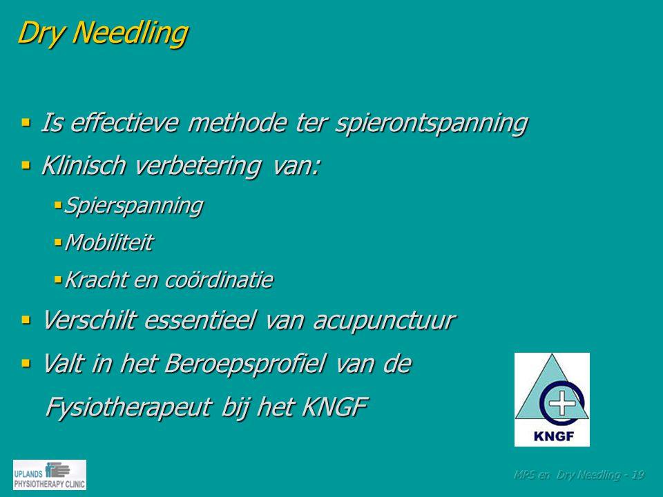 Dry Needling Dry Needling  Is effectieve methode ter spierontspanning  Klinisch verbetering van:  Spierspanning  Mobiliteit  Kracht en coördinatie  Verschilt essentieel van acupunctuur  Valt in het Beroepsprofiel van de Fysiotherapeut bij het KNGF Fysiotherapeut bij het KNGF