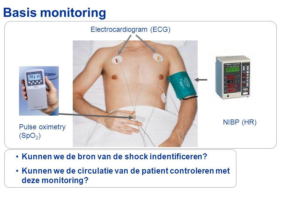 Basis monitoring Kunnen we de bron van de shock indentificeren? Kunnen we de circulatie van de patient controleren met deze monitoring? Electrocardiog
