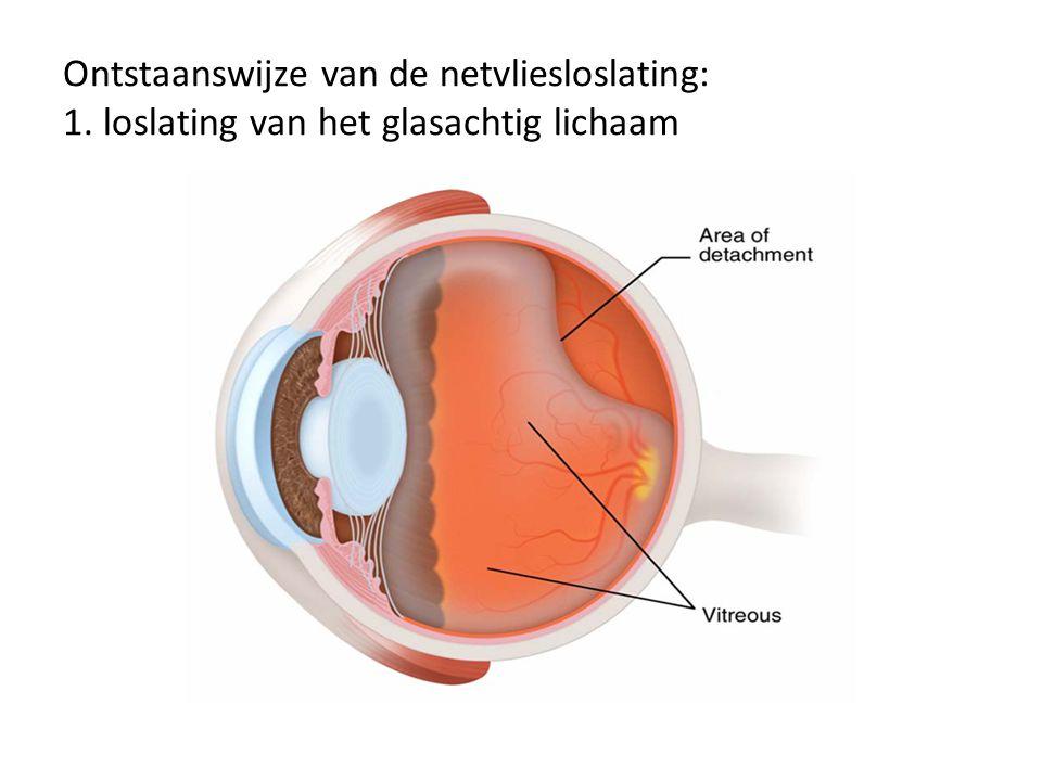 2. glasvocht trekt plaatselijk te hard en veroorzaakt een scheur in het netvlies