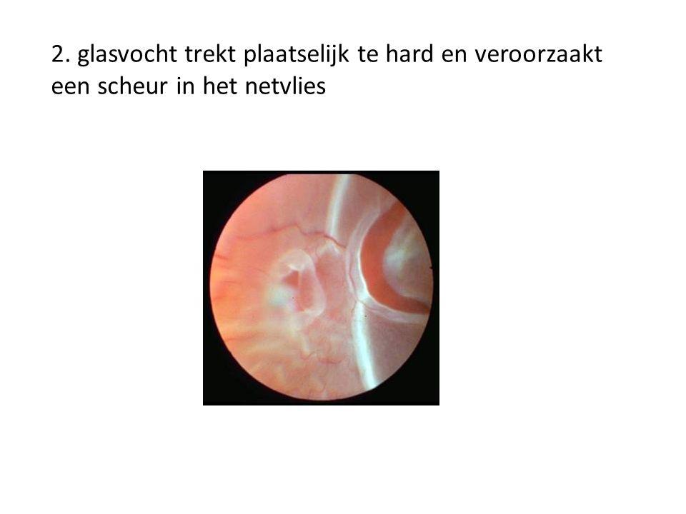 Onderdruk tussen retina en onderlaag valt weg, retina laat los From: http://www.bethesdaretina.com/library.htm
