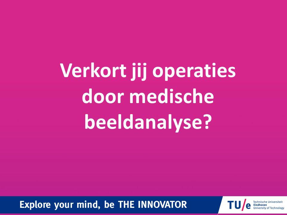 Verkort jij operaties door medische beeldanalyse?