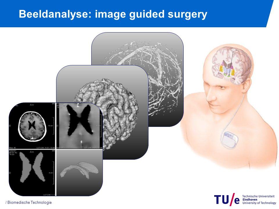 Beeldanalyse: image guided surgery / Biomedische Technologie