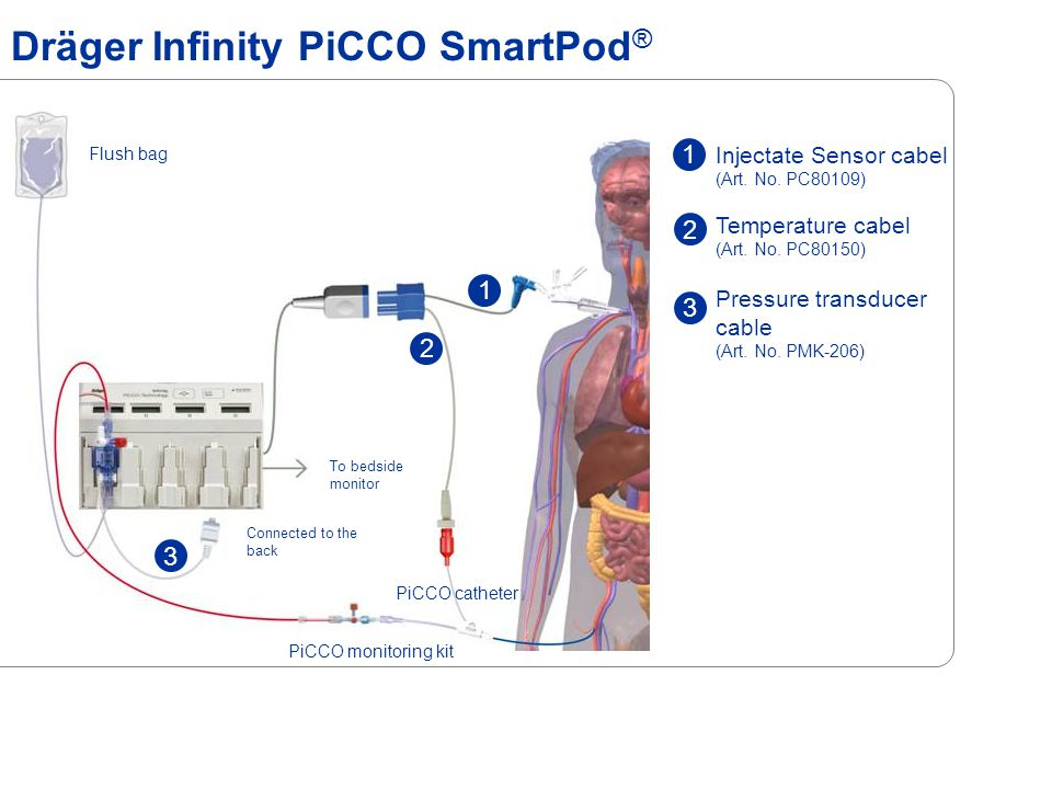 Dräger Infinity PiCCO SmartPod ® Flush bag PiCCO catheter PiCCO monitoring kit To bedside monitor Connected to the back Injectate Sensor cabel (Art.