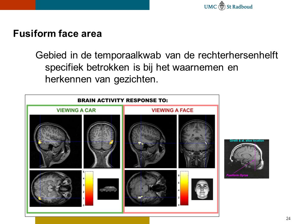24 Fusiform face area Gebied in de temporaalkwab van de rechterhersenhelft specifiek betrokken is bij het waarnemen en herkennen van gezichten.