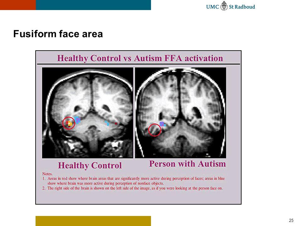 25 Fusiform face area