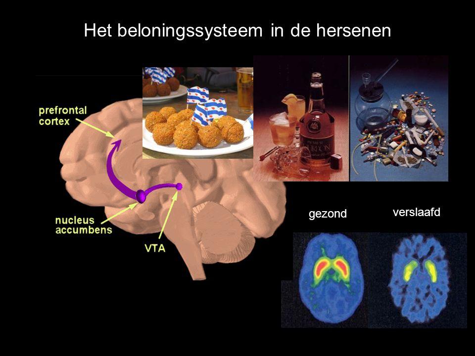 Het beloningssysteem in de hersenen gezond verslaafd