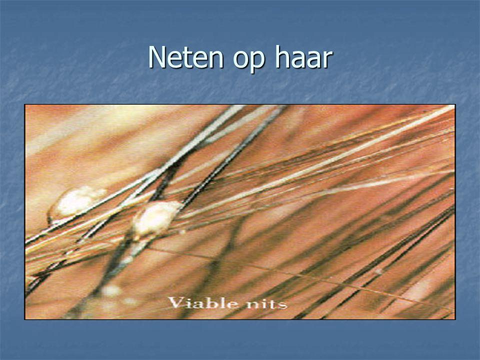 Lyme in Nederland Jaarlijks worden er in Nederland ongeveer 1,2 miljoen mensen gebeten door een teek.