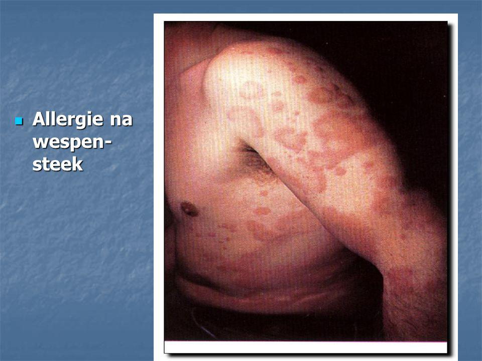 Allergie na wespen- steek Allergie na wespen- steek