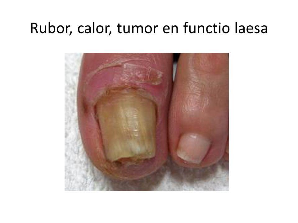 Rubor, calor, tumor en functio laesa