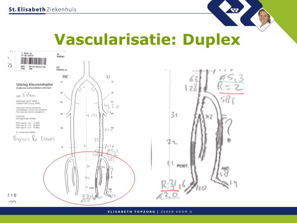 Vascularisatie: Duplex