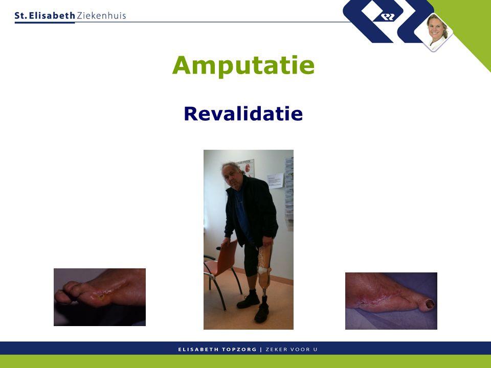 Amputatie Revalidatie
