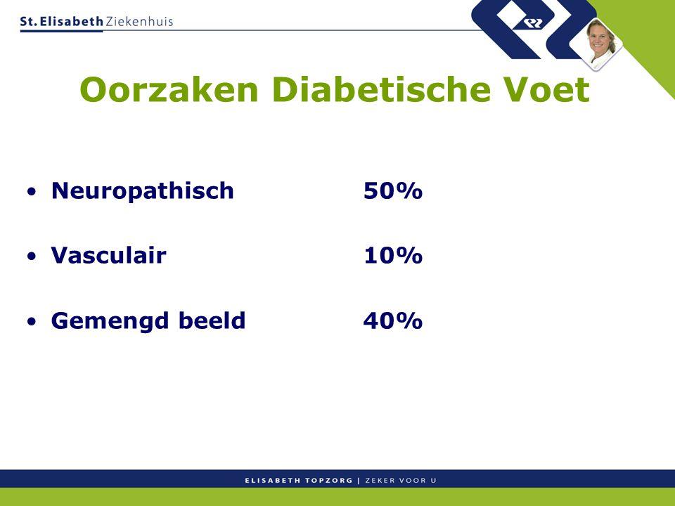 Oorzaken Diabetische Voet Neuropathisch50% Vasculair10% Gemengd beeld40%