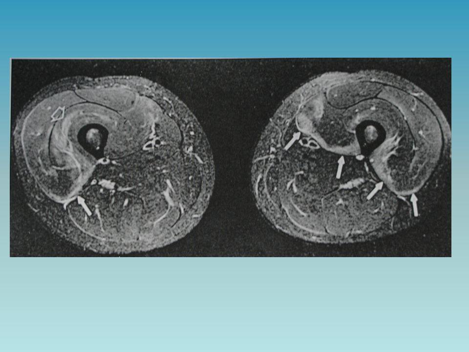 Echo- geen afwijkingen zichtbaar Gradaties van spier rupturen: DOMS ( delayed-onset muscle soreness) Na ongebruikelijke overbelasting Reversibel Wel verhoogde serum creatinine kinase spiegels; myonecrose