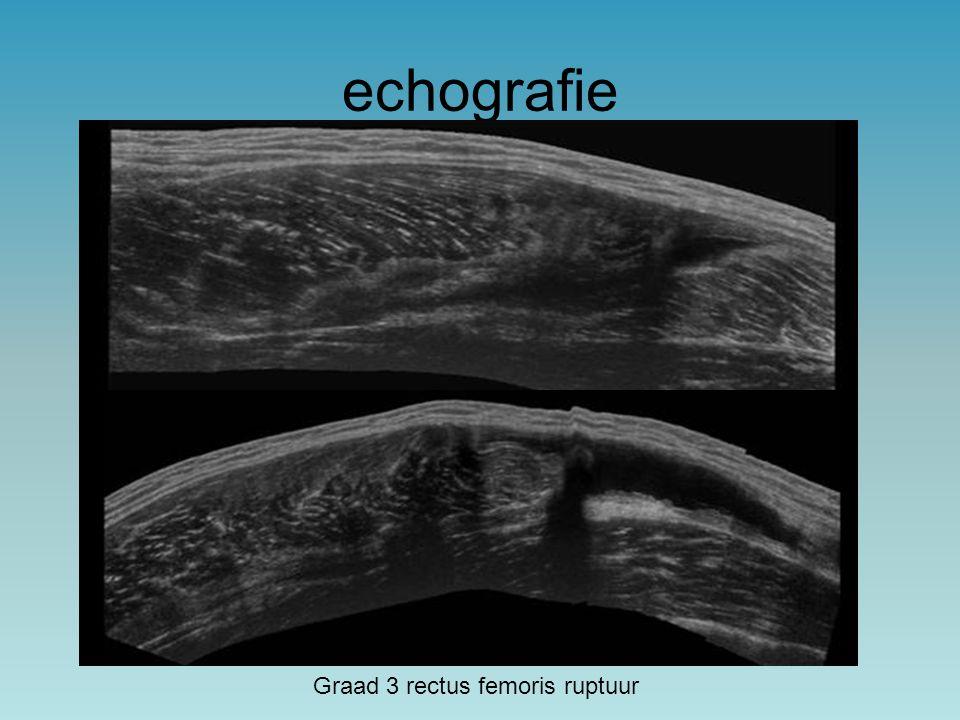 echografie Graad 3 rectus femoris ruptuur