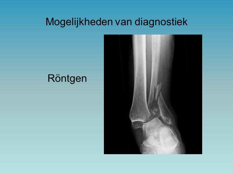 Röntgen Mogelijkheden van diagnostiek