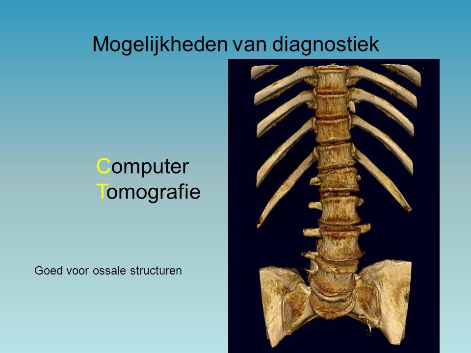 Computer Tomografie Goed voor ossale structuren