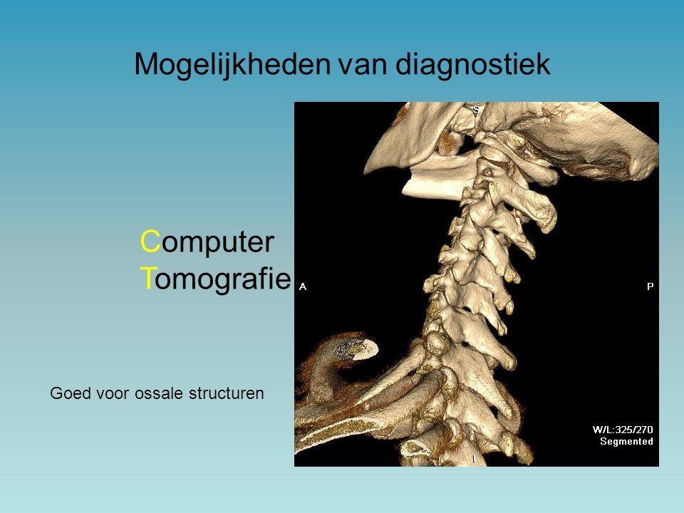 Mogelijkheden van diagnostiek Computer Tomografie Goed voor ossale structuren