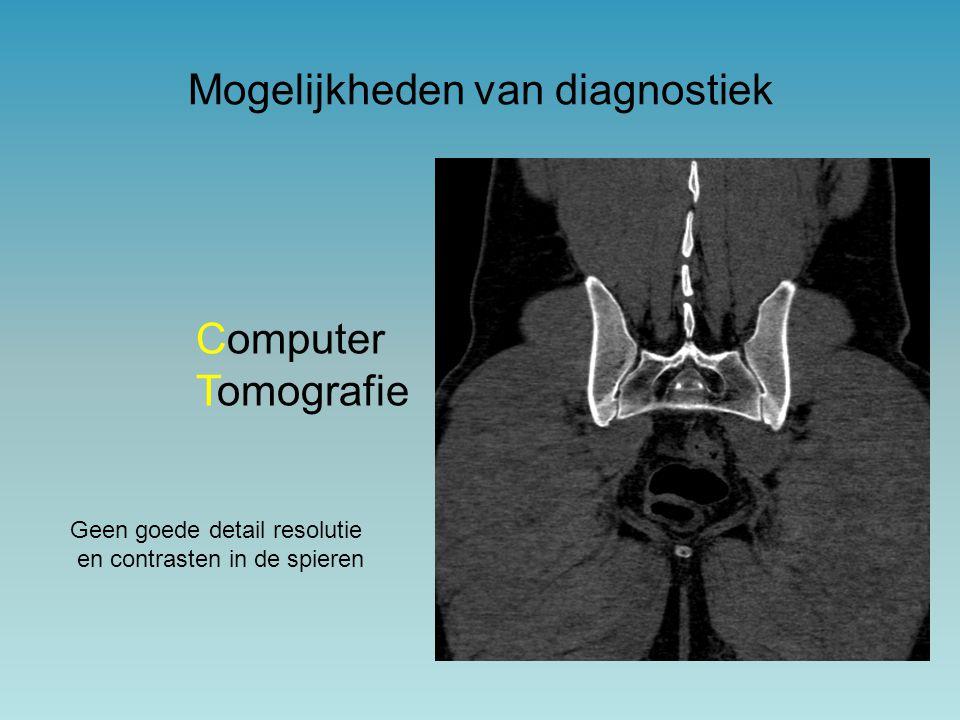 Mogelijkheden van diagnostiek Computer Tomografie Geen goede detail resolutie en contrasten in de spieren