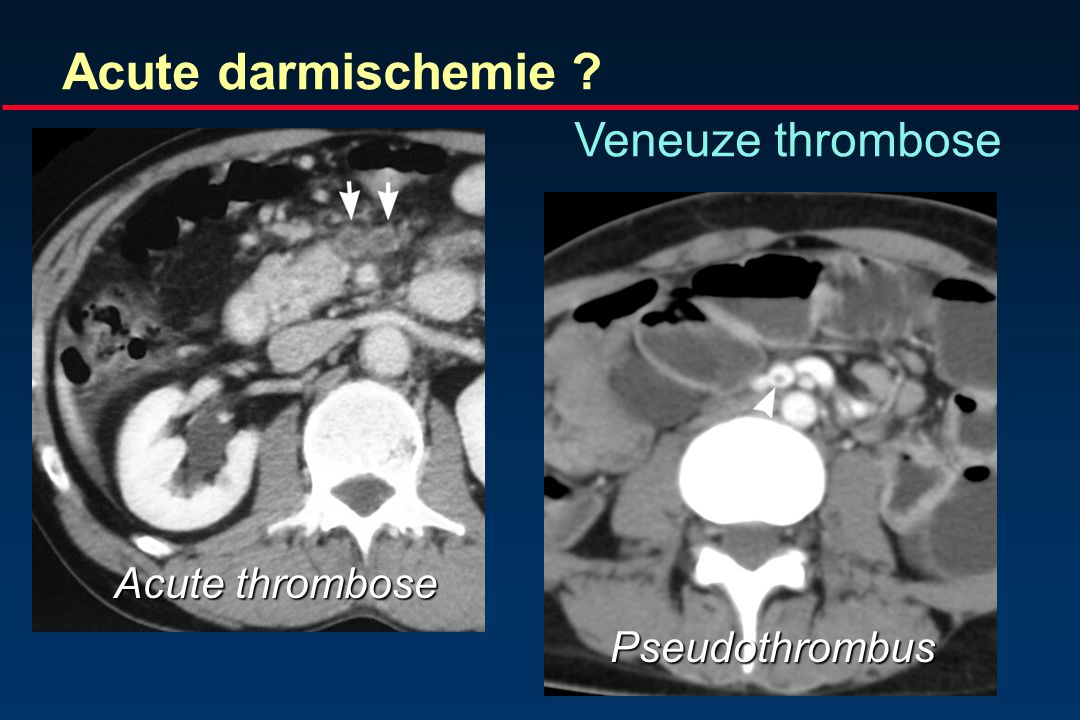 Vasculaire oorzaak Acute arteriele occlusie (50%) Non-occlusive ischemie(20-30%) Veneuze thrombose(5-15%) Acute mesenteriele ischemie Sheeran SR et al