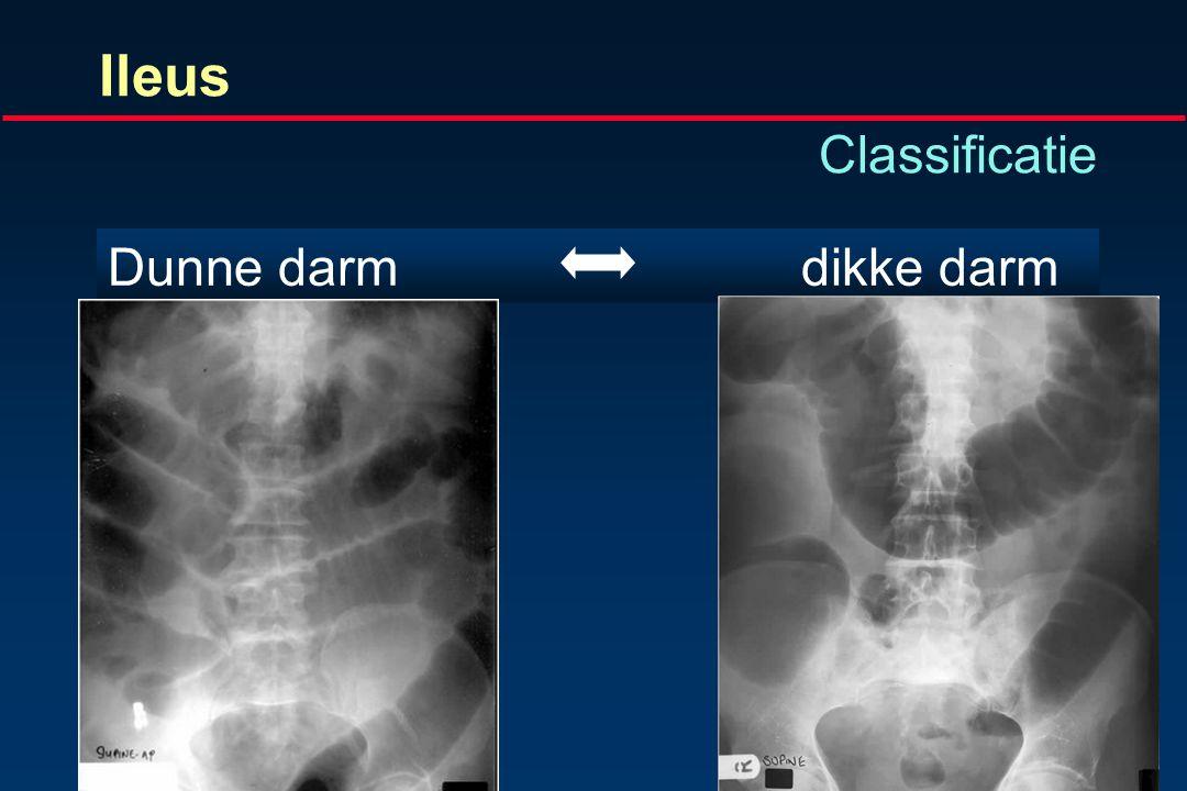 Ileus Radiologische classificatiemogelijkheden Dunne darm dikke darm Partieelcompleet Mechanischparalytisch Obstructiepseudo-obstructie Simpelstrangul