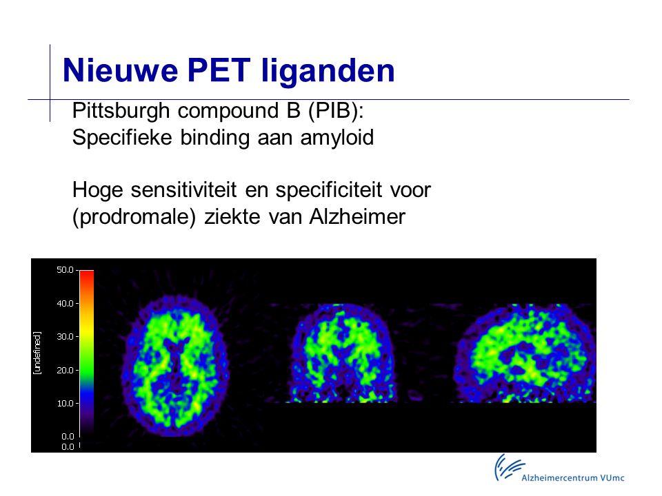 Nieuwe PET liganden Pittsburgh compound B (PIB): Specifieke binding aan amyloid Hoge sensitiviteit en specificiteit voor (prodromale) ziekte van Alzheimer