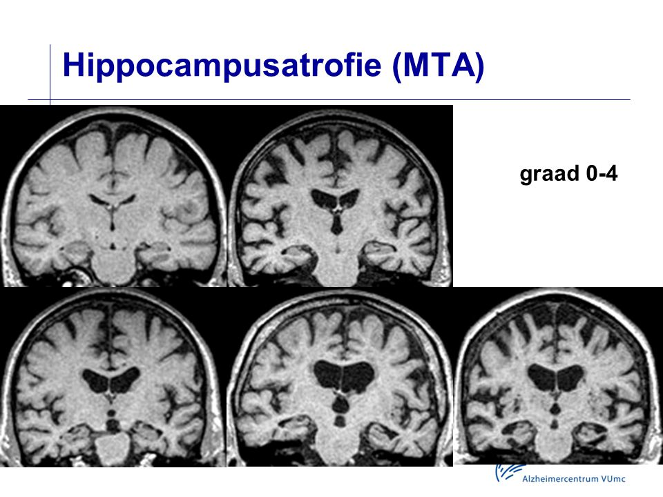 Hippocampusatrofie (MTA) graad 0-4