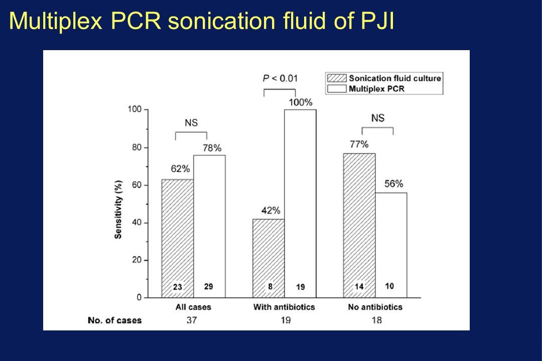 Multiplex PCR sonication fluid of PJI