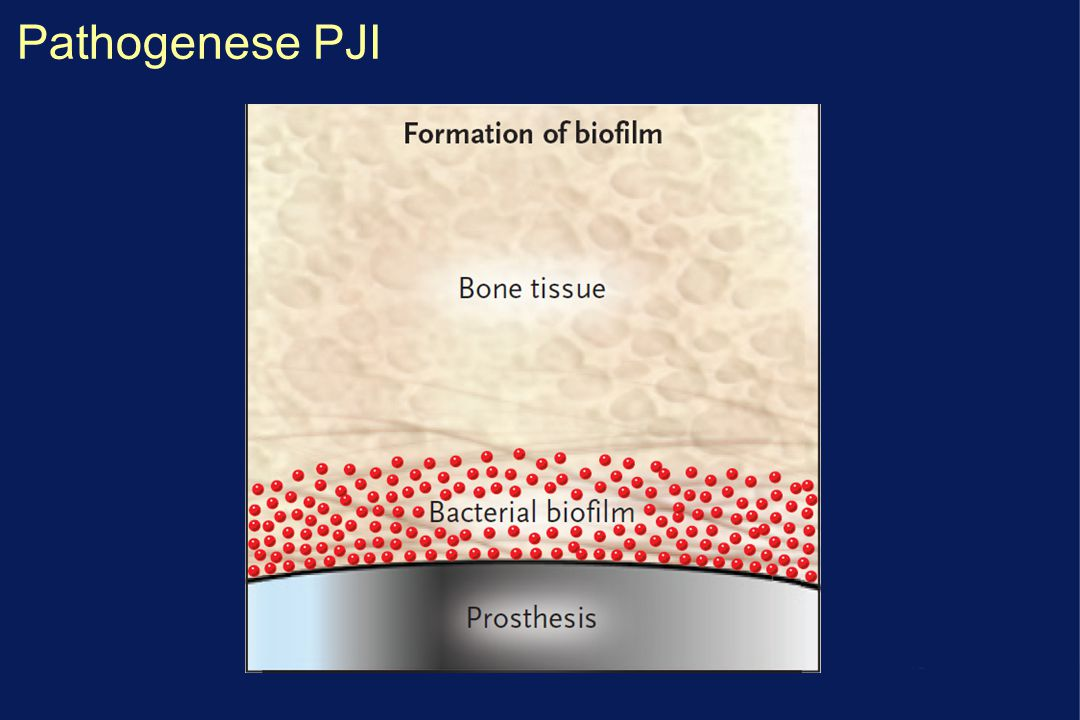 Pathogenese PJI