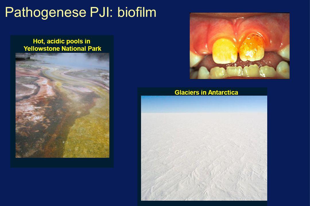 Pathogenese prothese infecties: classificatie