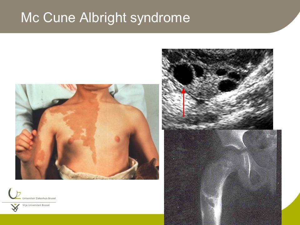 Mc Cune Albright syndrome
