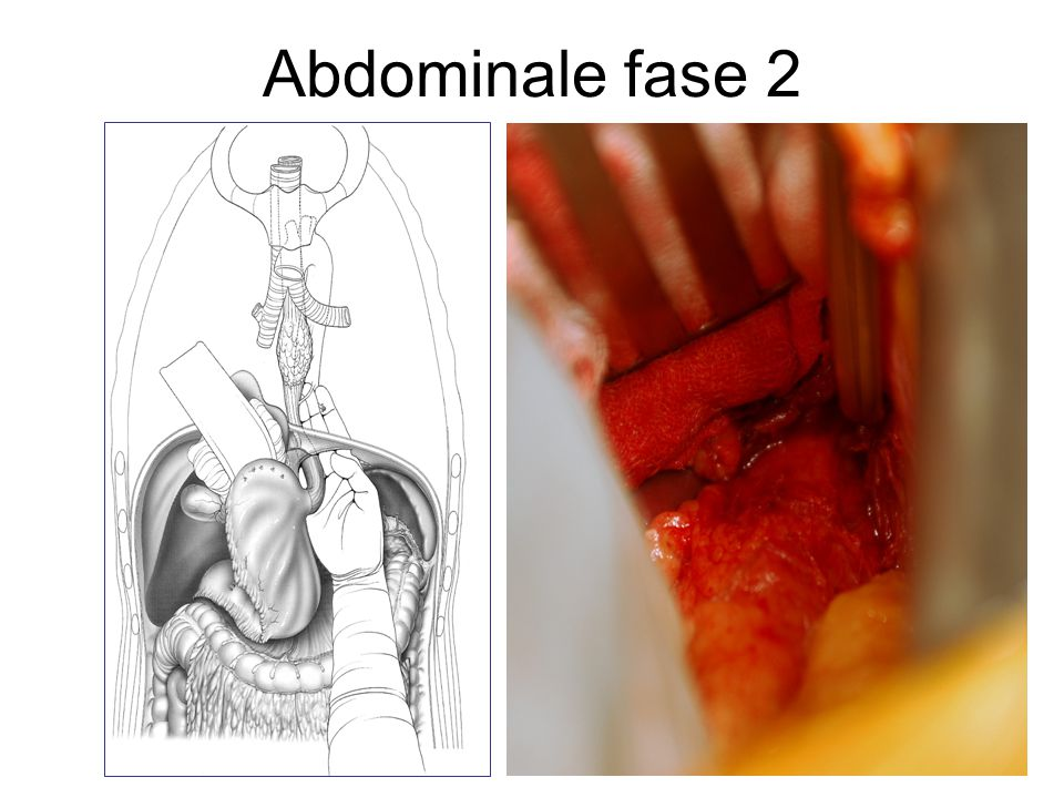Abdominale fase 2