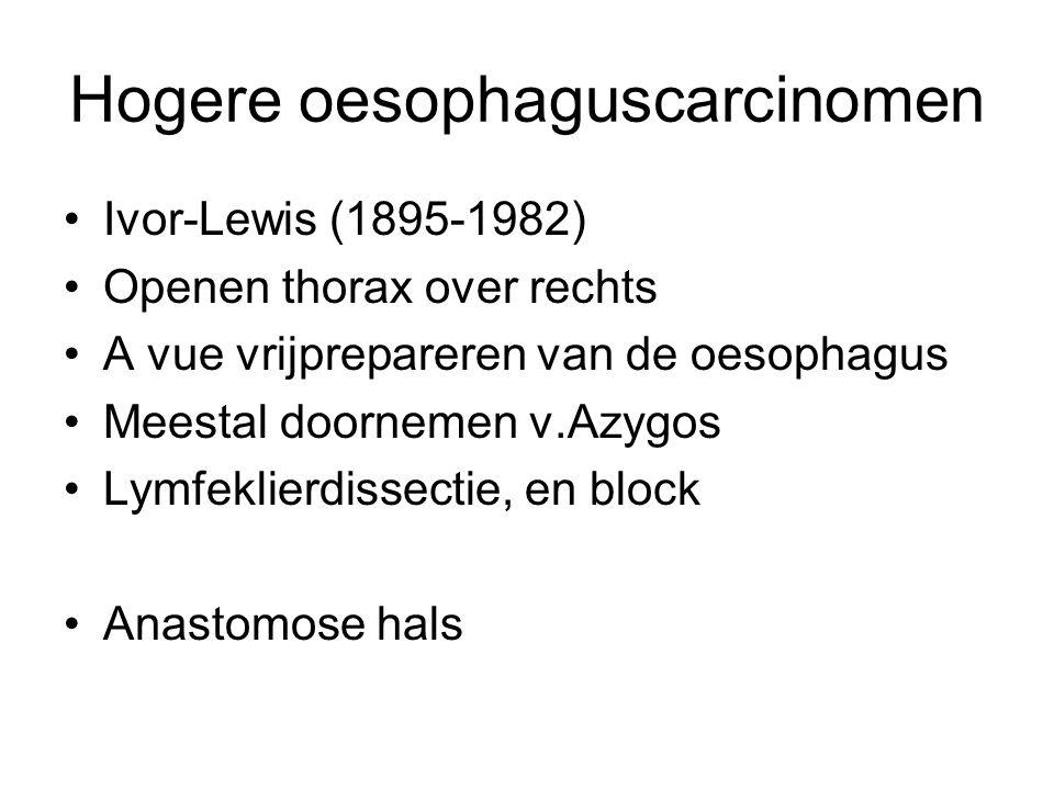 Hogere oesophaguscarcinomen Ivor-Lewis (1895-1982) Openen thorax over rechts A vue vrijprepareren van de oesophagus Meestal doornemen v.Azygos Lymfekl
