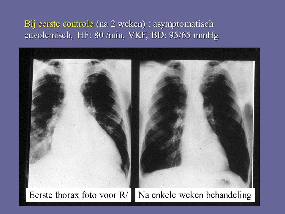 Eerste thorax foto voor R/Na enkele weken behandeling Bij eerste controle (na 2 weken) : asymptomatisch euvolemisch, HF: 80 /min, VKF, BD: 95/65 mmHg