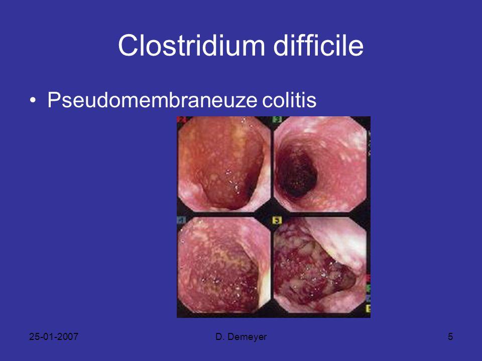 25-01-2007D. Demeyer5 Clostridium difficile Pseudomembraneuze colitis