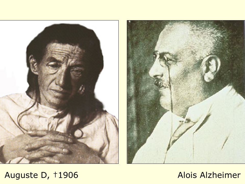 Auguste D, †1906Alois Alzheimer